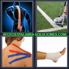 Imágen de columna vertebral, Pierna con pie ortopédico y muletas, Mujer con espalda con cinta