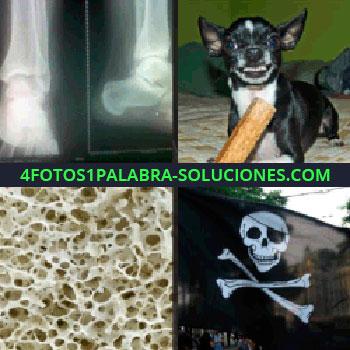 4 Fotos 1 Palabra - radiografía. Perro enfadado. Parece una esponja. Bandera con calavera