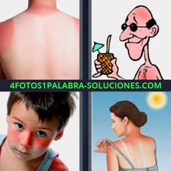 4 Fotos 1 Palabra - ocho-letras espalda roja del sol. Dibujo hombre tomando coctel. Niño con mofletes rojos. Mujer espalda quemada.